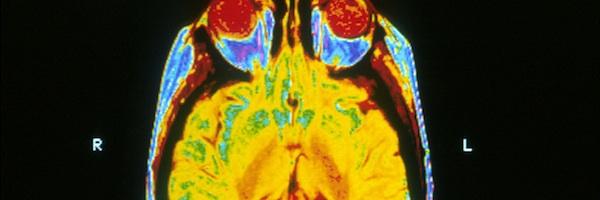 neurodegenerative diseases essay